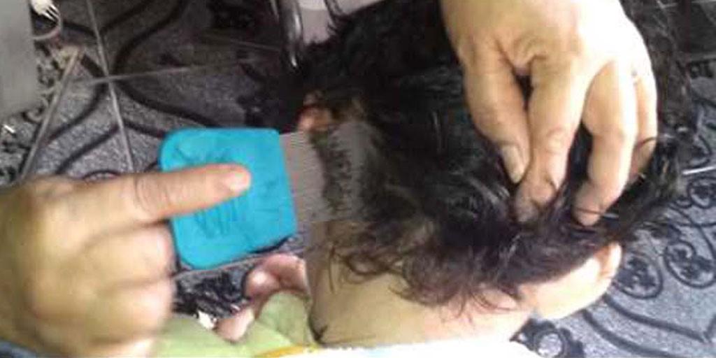 5 Cara Sederhana Menghilangkan Kutu Rambut